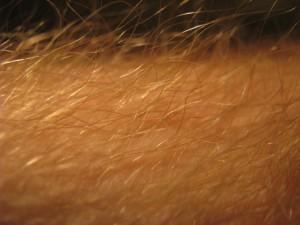 dermatofity